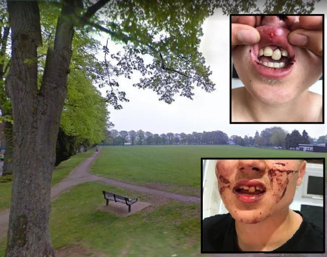Jack's injuries after he was attacked in Witney last month. Background - The Leys park (Google Maps)