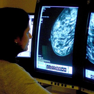 Professor Mark Lawler said a high proportion of older women with a certain form of breast cancer receive less chemotherapy than their younger counterparts